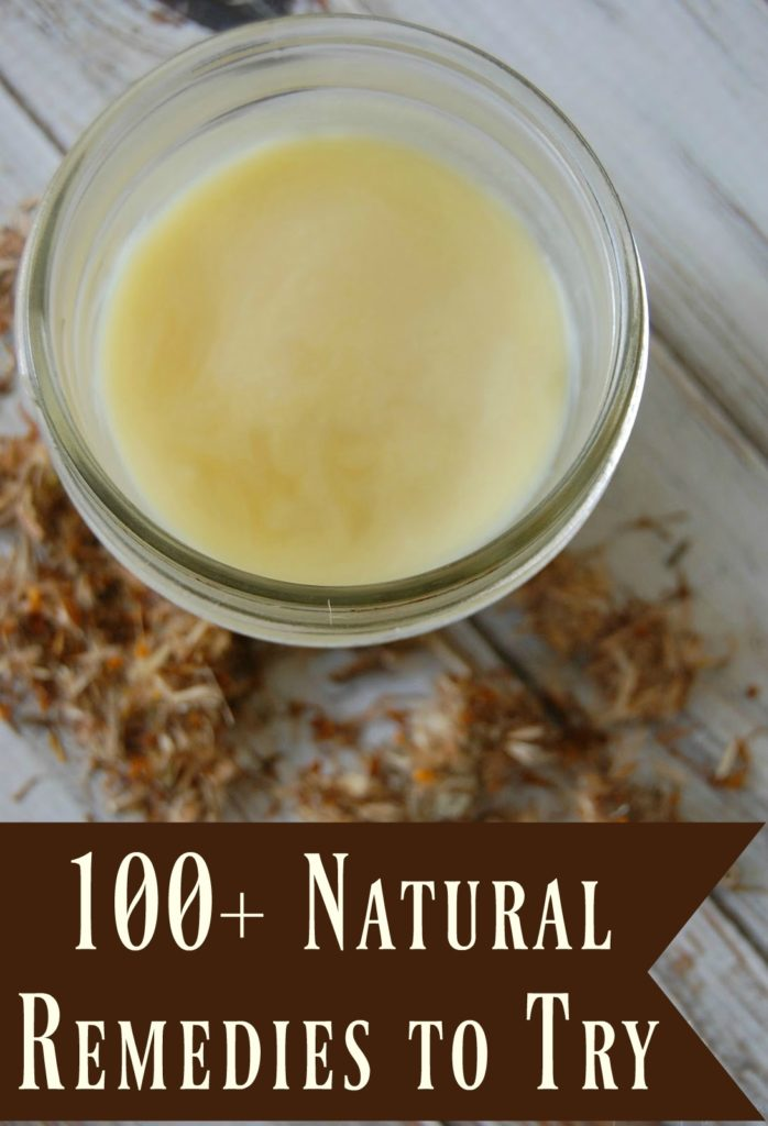 100+ Natural Remedies to Try - Whoa! Talk about an amazing resource! There are so many great looking remedies in here!